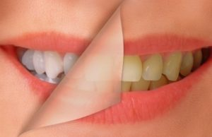 whitening1a