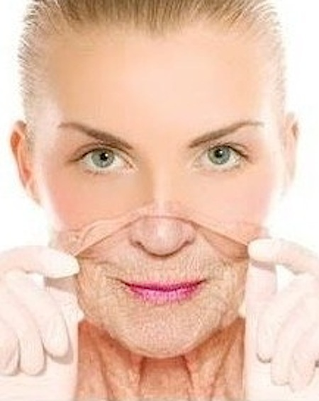 Anti Wrinkle Injections 2